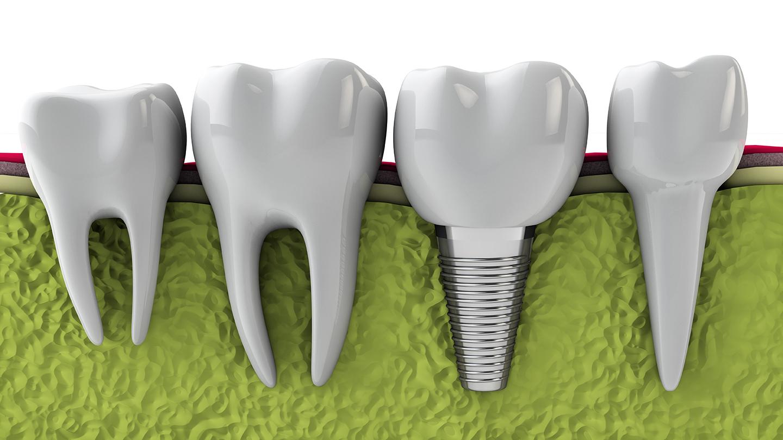 implants  u2013 drs  howard  nicholas  and baburek